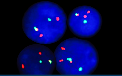 Fluorescent in situ Hybridization (FISH) – Made Easy